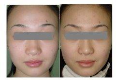 人人都爱明星鼻 广州最权威的鼻整形美容医院排名